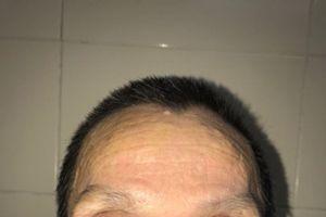 Khối u nguy hiểm trên mặt được bác sĩ phẫu thuật kịp thời