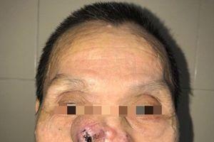 Tái tạo toàn bộ má, mũi cho bệnh nhân ung thư