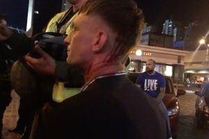 CĐV Liverpool bị tấn công chảy máu đầu tại Kiev