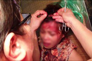 Điều tra nghi án vợ bị 'bồ' của chồng đánh trọng thương