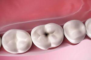 Cách ngăn ngừa và điều trị sâu răng hiệu quả