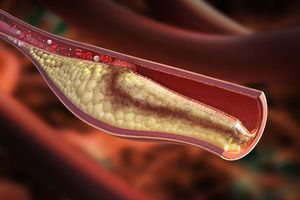 Chi phí điều trị mỡ máu cao gấp 40 – 50 lần so với bệnh truyền nhiễm