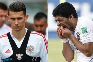 Hậu vệ Nga tuyên bố không sợ Suarez… cắn