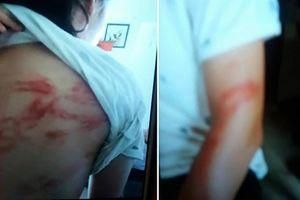 Vụ bạo hành con đẻ: Bố thường đấm, đá, tát, đập đầu con vào tường