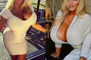 Người phụ nữ mang bộ ngực 9kg cầu cứu bác sĩ vì bị lệch