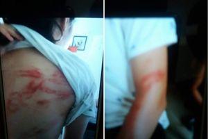 Chủ tịch Hà Nội: Làm rõ vụ 2 bé gái bị bố bạo hành