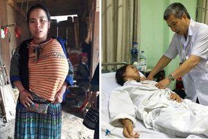 Cô gái người Mông 12 năm chịu bệnh hiểm nghèo khiến ngực to như quả mít, liên tục chảy dịch
