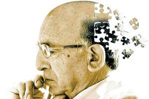 Công nghệ giúp đẩy lùi bệnh mất trí nhớ