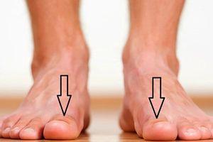 7 dấu hiệu bất thường ở chân cảnh báo sức khỏe nguy hiểm