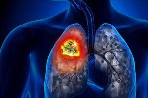 Ứng dụng công nghệ hạt nhân trong chẩn đoán và phát hiện sớm di căn ung thư