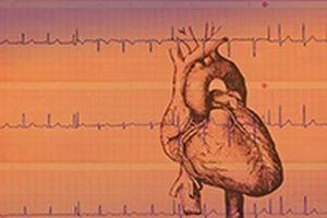 Smart Vest - áo thông minh theo dõi nhịp tim