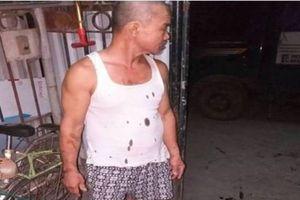 Điều tra vụ gia đình thương binh liên tục bị 'khủng bố' bằng chất thải