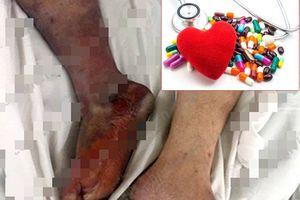 Một nam trung niên bị cắt cụt chân chỉ vì không uống thuốc đều đặn