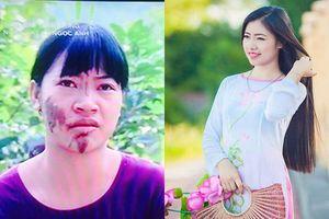 Cuộc sống của cô gái dân tộc Sán Dìu sau khi lột xác nhờ phẫu thuật thẩm mỹ!