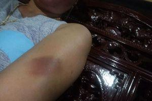 Gia Lai: Trưởng công xã bị tố quan hệ bất chính và hành hung người tình