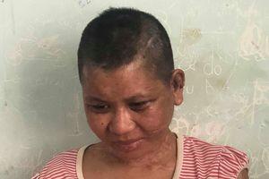 Điều tra vụ thiếu nữ làm thuê tố bị chủ tra tấn dã man