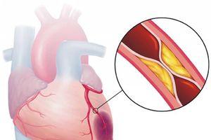 Một huyệt cứu tinh nằm ở chân, xoa bóp hàng ngày sẽ giúp tăng cường tuần hoàn máu