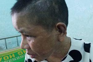 Vụ Nga 'vọc' nghi tra tấn dã man người làm: Phường tưởng chỉ va chạm bình thường!