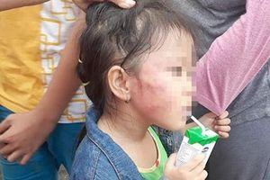 Cô giáo đánh thâm mặt bé 5 tuổi, cơ sở mầm non bị đình chỉ