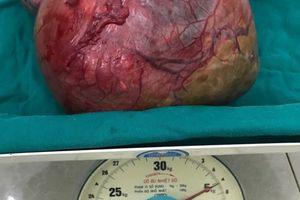 Hà Giang: Bệnh viện đa khoa Đồng Văn phẫu thuật thành công u nang nặng 5kg