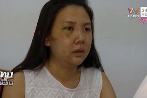 Cô gái bị người yêu 7 năm đánh dã man: 'Cơ thể đau, lòng cũng đau'
