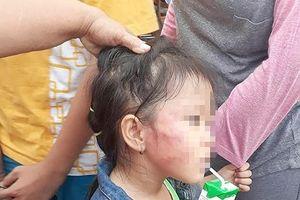 TPHCM: Bé gái 5 tuổi bị cô giáo tát bầm tím, sưng mặt