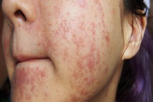5 bước 'giải cứu' làn da khi bị dị ứng mỹ phẩm