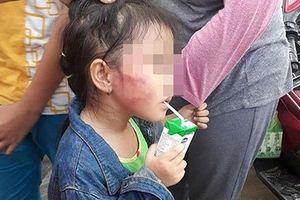 Bảo mẫu đánh bé 5 tuổi nứt xương hàm: Đánh dọa không ngờ gây chấn thương