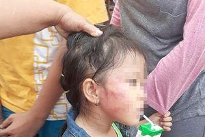 Bắt giữ cô giáo bạo hành bé gái 5 tuổi ở nhóm trẻ Ánh Sao Vàng