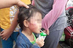 Cô giáo tát bé gái 5 tuổi tím bầm mặt ở TP.HCM khai gì?