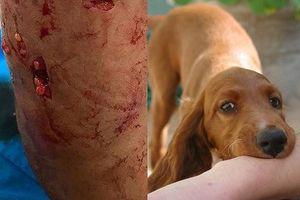 Bé trai 4 tuổi ở Hà Nội bị chó nhà cắn nham nhở vùng da mạng sườn