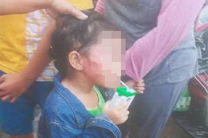 Bắt khẩn cấp bảo mẫu tát sưng mặt bé gái 5 tuổi tại trường mầm non
