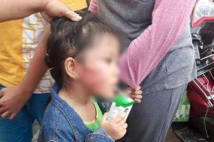 Bắt khẩn cấp bảo mẫu đánh bé gái 5 tuổi sưng mặt