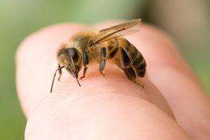 Một phụ nữ tử vong do bị ong vò vẽ đốt khắp người