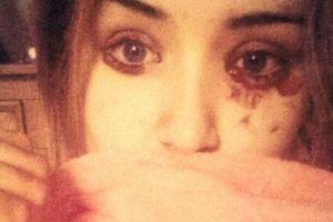 Cô gái mắc bệnh lạ, chảy… huyết lệ năm lần một ngày