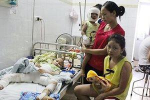 Phú Thọ: Đổ cồn nướng mực gần quạt, 3 trẻ bỏng nặng