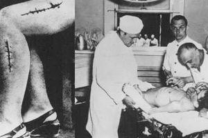 Rùng mình thí nghiệm trên cơ thể người của Đức quốc xã