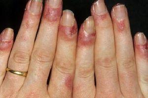 Coi chừng mắc bệnh hiểm nếu chân tay thường xuyên tê bì, ê buốt dù đã giữ ấm cơ thể