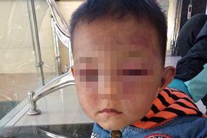 Bé trai 2 tuổi bị bố dượng bạo hành