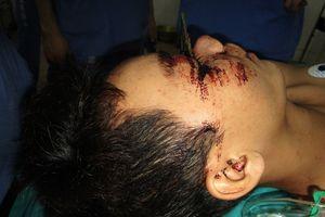 Phẫu thuật thành công cho nam thanh niên bị lưỡi cưa sắt găm ngang mặt