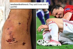 Zlatan Ibrahimovic tiết lộ ảnh khủng khiếp về chấn thương đầu gối ở Man United