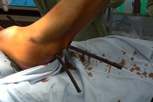 Té từ trên cao xuống, người đàn ông bị 2 thanh sắt xuyên thấu bụng