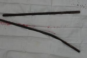 Ngã từ công trường cao, nam công nhân bị 2 thanh sắt đâm xuyên háng