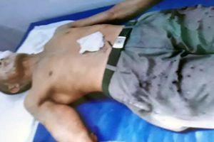 Bắt giữ nghi phạm tạt axit khiến 2 người đàn ông bị bỏng nặng ở Thái Bình