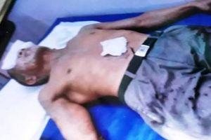 Hai người đàn ông bị tạt axit bỏng nặng ở Thái Bình