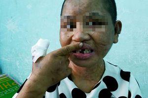 Vụ cô gái bị tra tấn dã man: Bà chủ phủ nhận dùng bàn là, thanh sắt nóng dí lên người
