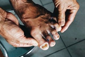 Những bệnh lý thường gặp khi sống chung với lũ và cách phòng tránh
