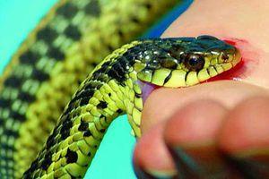 Sơn La: Kinh hoàng nỗi lo rắn độc cắn khi mùa mưa đến