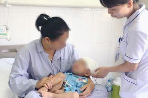 Bác sĩ khoan sọ não, cứu bé trai tụ máu khắp đầu vỡ xương sọ