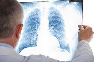 Ung thư phổi: 96,8% liên quan đến hút thuốc lá